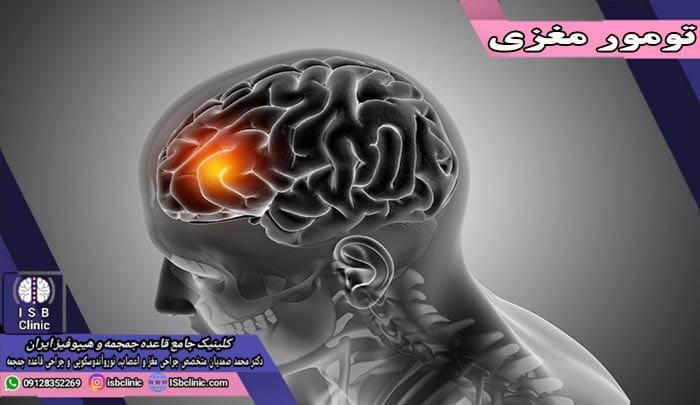 تومور مغزی چیست
