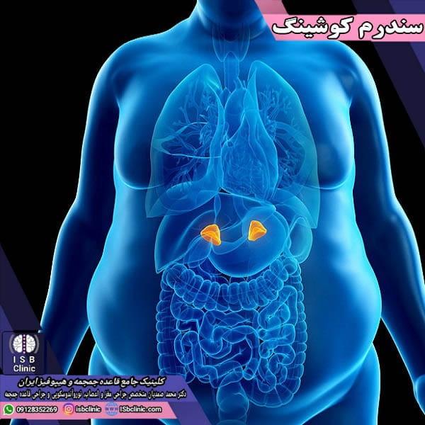 سندرم کوشینگ: اختلالی نادر از عمق مغز تا غدد فوق کلیه