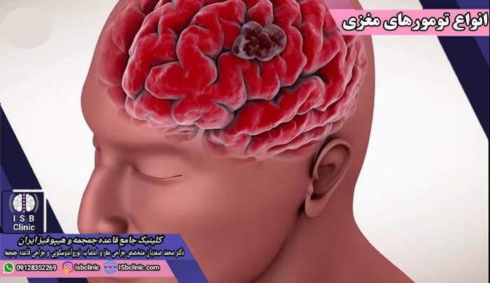 انواع تومورهای مغزی