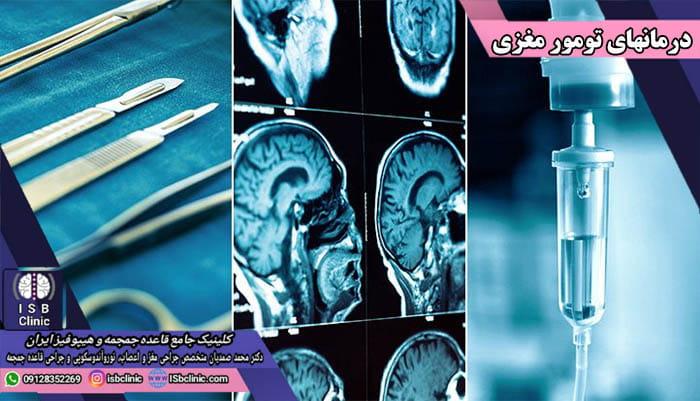 انواع روش های درمانی برای تومورهای مغزی