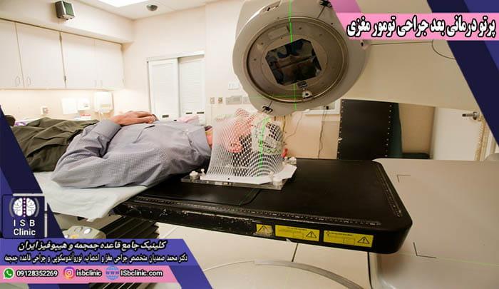 پرتو درمانی بعد از جراحی تومور مغزی