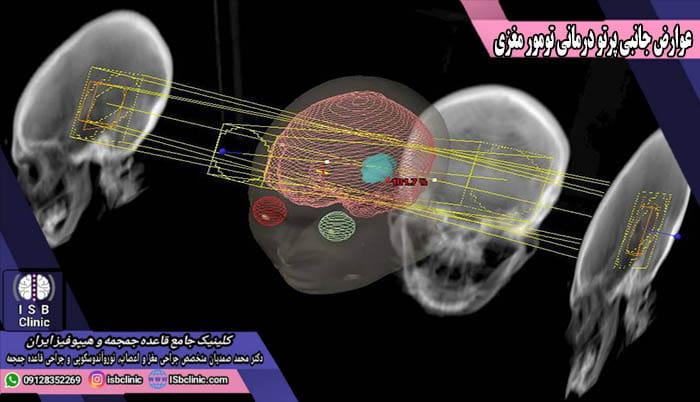 عوارض پرتو درمانی بعد از عمل جراحی تومور مغزی