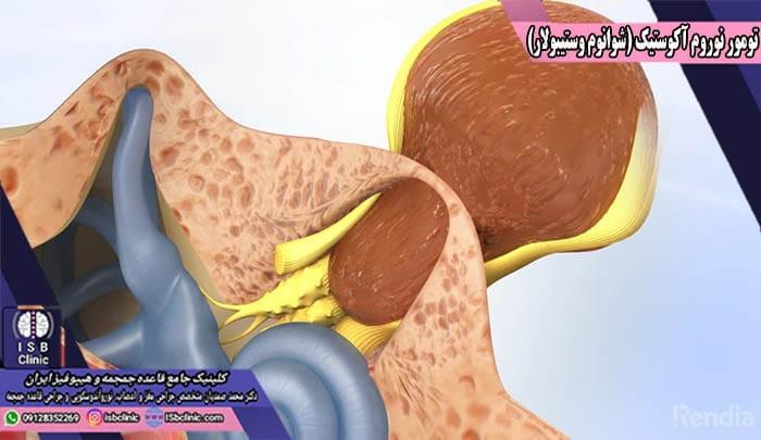 تومورهای نوروم آکوستیک و وزوز گوش