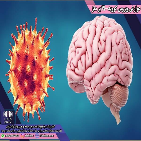 عوارض ویروس کووید-19 بر مغز