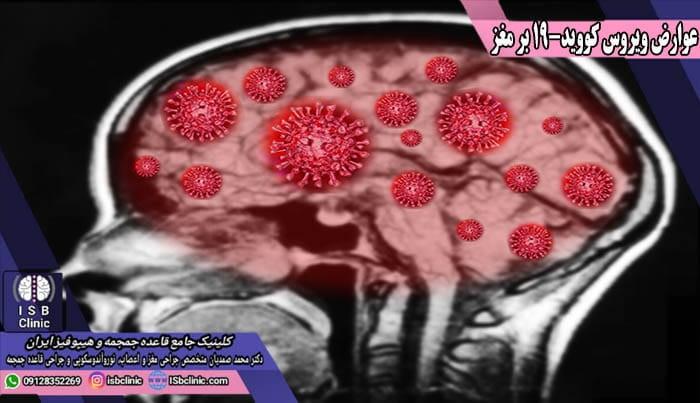 چگونگی آسیب های مغزی بر اثر عوارض ویروس کووید-19