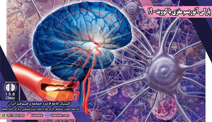 پارگی آنوریسم مغزی با ابتلاء به کووید-19