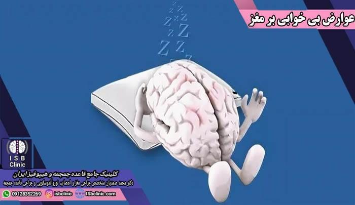 تاثیرات بی خوابی بر مغز