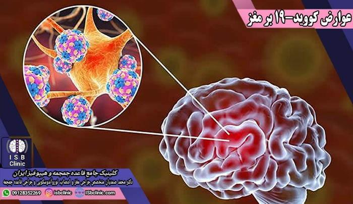 انواع سکته مغزی به عنوان پیامد عوارض ویروس کووید-19