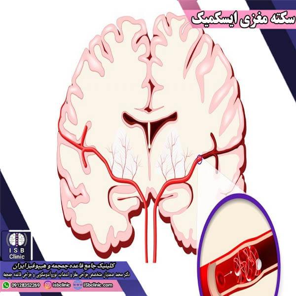 سکته مغزی ایسکمیک چیست