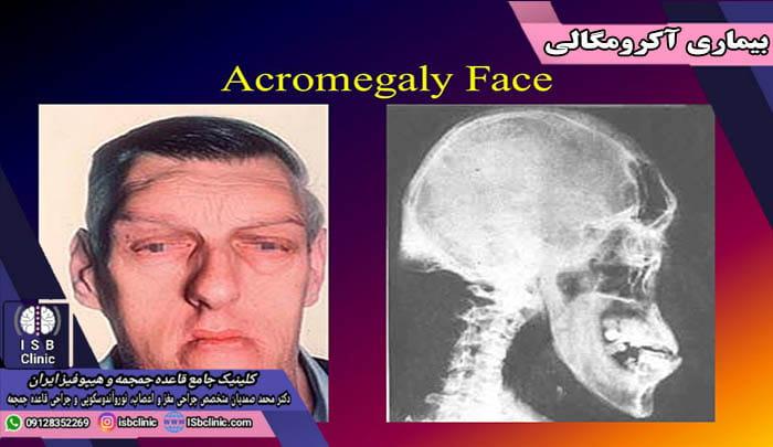 بیماری آکرومگالی چیست؟