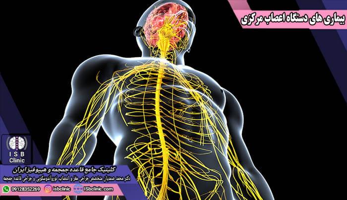 بیماری های دستگاه اعصاب مرکزی