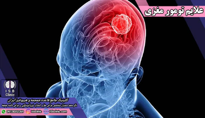 از کجا بفهمیم تومور مغزی داریم