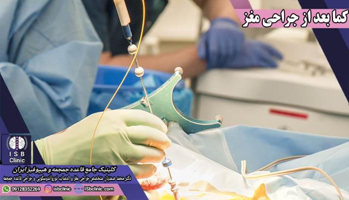 کما بعد از عمل جراحی مغز