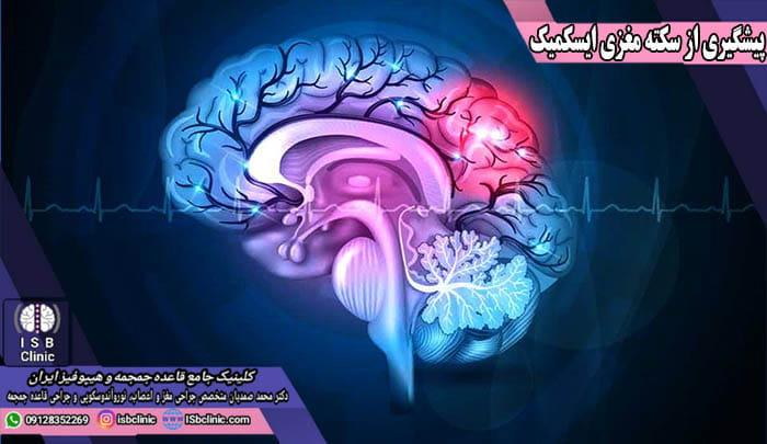 پیشگیری از سکته ایسکمیک مغز
