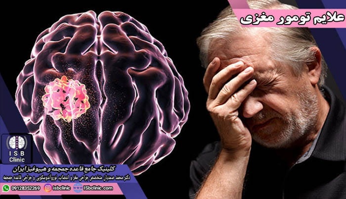 شایع ترین علائم تومور مغزی