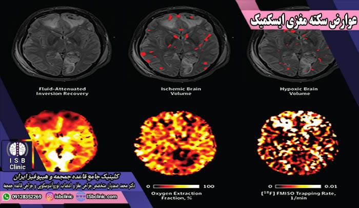 عوارض سکته مغزی ایسکمیک