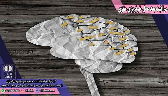 مراقبت های بعد از عمل خونریزی مغزی