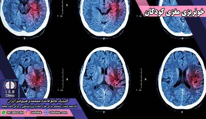 علائم خونریزی مغزی در کودکان