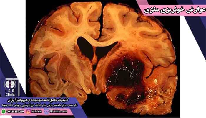 شناخت عوارض خونریزی مغزی