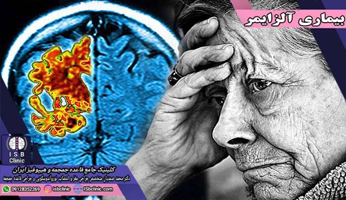 آلزایمر چیست و چگونه به وجود می آید؟