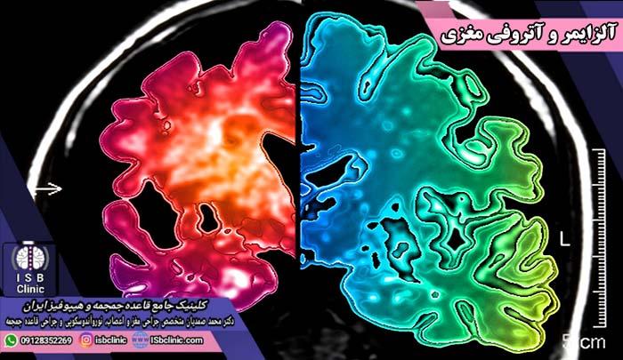 آلزایمر و کوچک شدن مغز